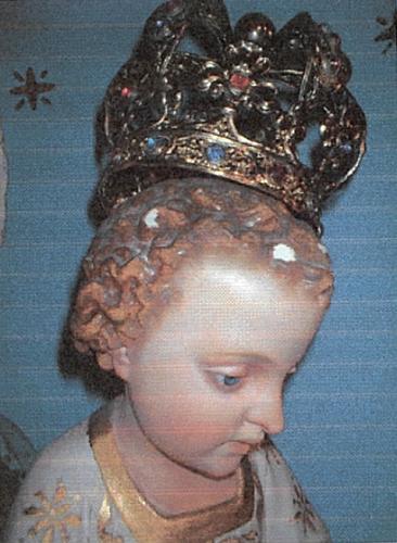 Abrasioni in corrispondenza della corona